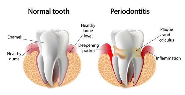 Periodontal (Gum) Disease Treatment by Park West Dental Care in Idaho Falls ID