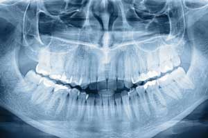 Park West Dental uses digital x-rays in their exceptional dental practice in Idaho Falls, ID.