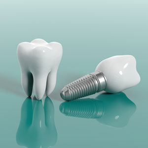 Park West Dental provides expert advice on the dental implant procedures they perform in Idaho Falls, Idaho.